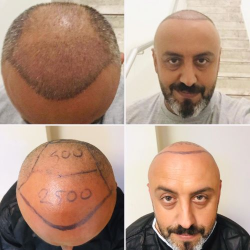 Пересадка волос у мужчины в клинике Салусс