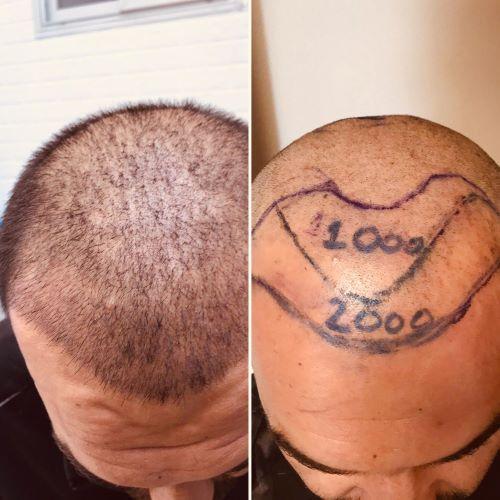 Пересадка волос в медицинском центре Салусс