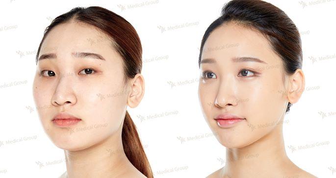 Изменение формы лица в JK Plastic Surgery