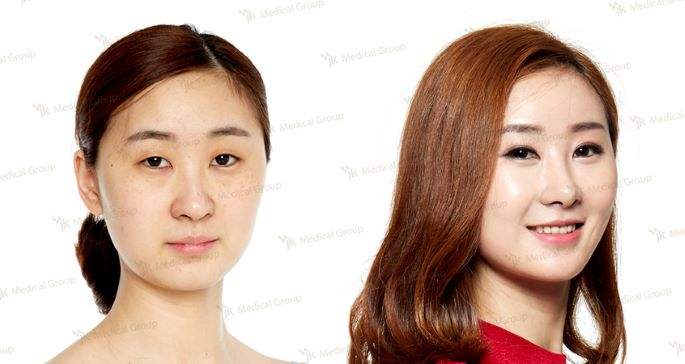 Blepharoplasty at JK Plastic Surgery in Korea
