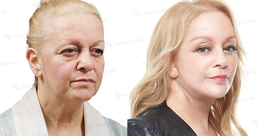 Face&neck lift and Anti-aging therapy at JK Plastic Surgery in Korea