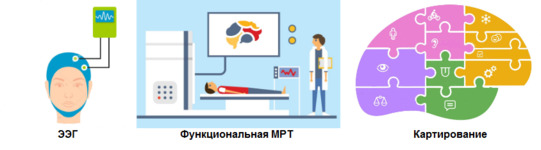 Диагностика перед операцией при эпилепсии