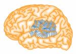 Множественные субпиальные рассечения при эпилепсии