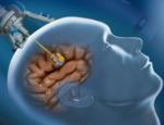 Лазерная хирургия эпилепсии