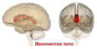 Коллазотомия мазолистого тела при эпилепсии