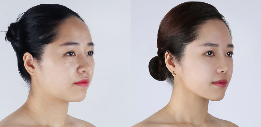 Nose job in Banobagi Clinic