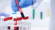 Анализ крови при эпилепсии