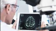 МРТ головного мозга при эпилепсии