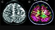 ПЭТ при эпилепсии