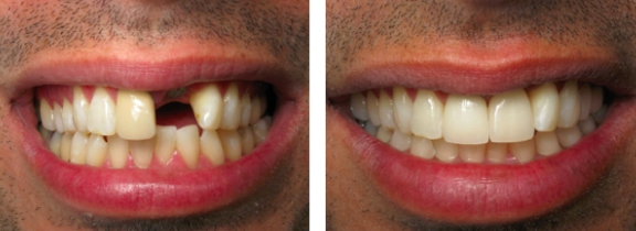 Dental implants in Budapest: before and after