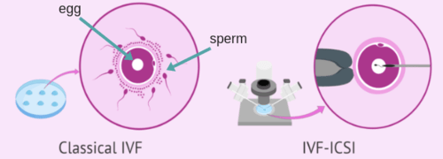 IVF and ICSI in Dunya IVF Clinic