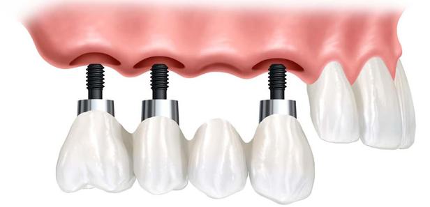 Dental implants in Bokanova Clinic, Mexico