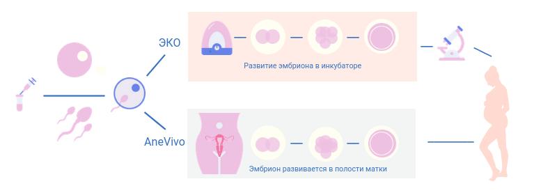 Инфографика о разнице методов ЭКО