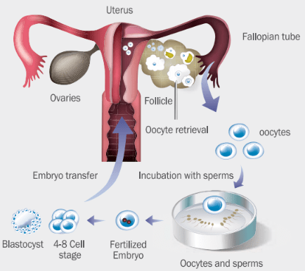 Schematic of IVF steps at CHA Fertility Center