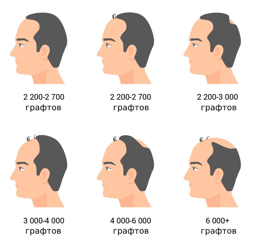 Сколько стоит пересадка волос: количество графтов