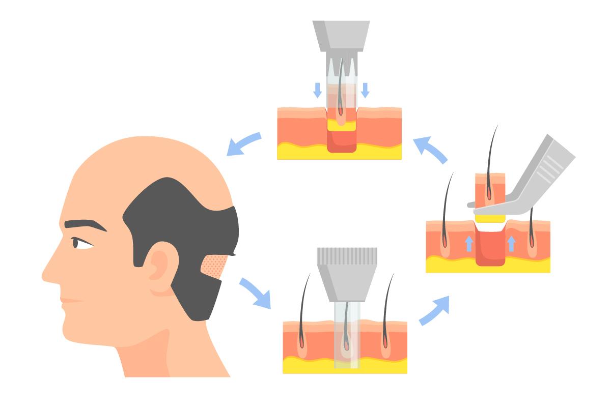 Бесшовная пересадка волос ФУЕ (FUE — Follicular Unit Extraction)