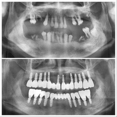 Dental implants in S-Plant Dental Clinic