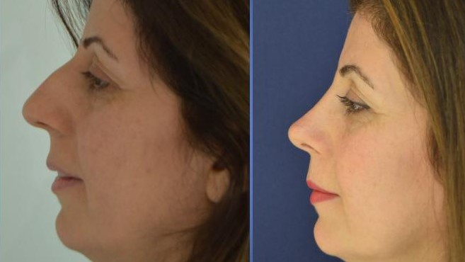 Nose job at Istanbul Aesthetics Plastic Surgery Center