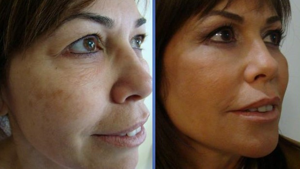 Facelifting at Istanbul Aesthetics