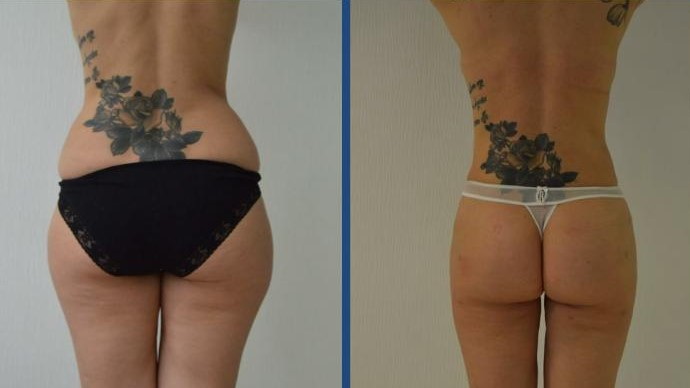 Lipo results at Istanbul Aesthetics