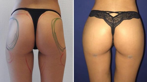 Brazilian butt lift at Istanbul Aesthetics Plastic Surgery Center
