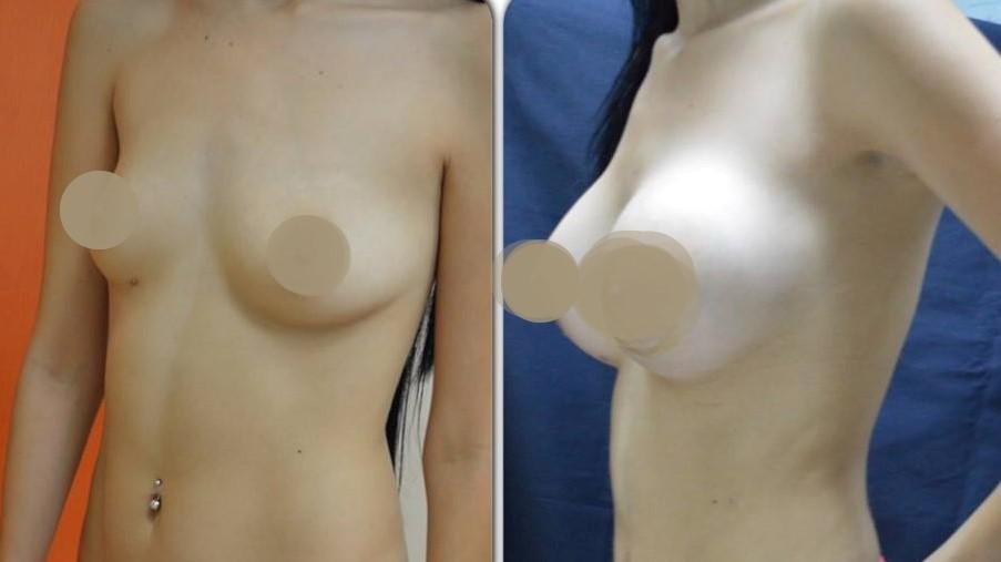 Увеличние груди в клинике доктора Артуро