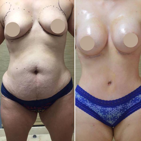 Преображение мамочки в клинике доктора Артуро