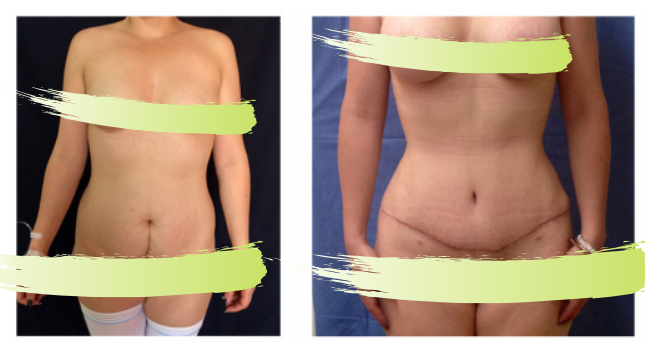 Liposuction, tummy tuck, and breast augmentation in Salutaris clinic