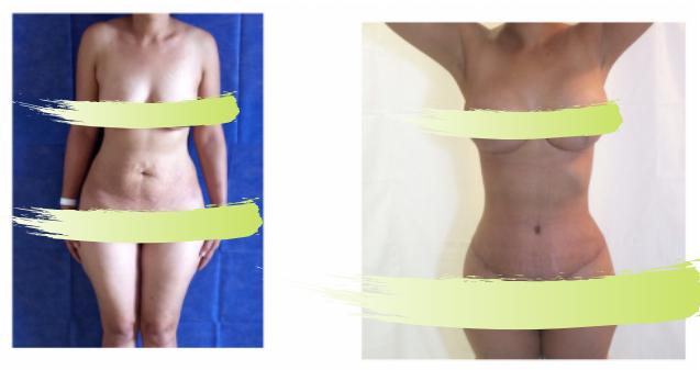 Liposuction, tummy tuck, breast augmentation at Salutaris