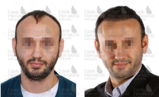 Результаты пересадки волос в клинике Estetik International