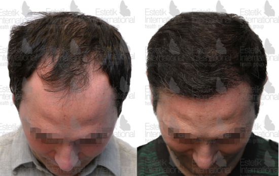 До и после пересадки волос в клинике Estetik International