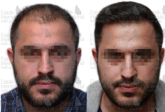 До и после трансплантации волос в клинике Estetik International