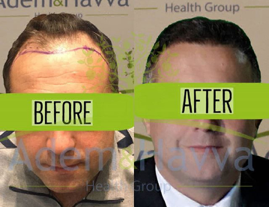 Before and after hair implant in Turkey: Adem and Havva Medical Center