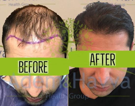До и после пересадки волос в клинике Адам и Ева