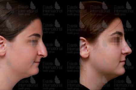 Фото до и после ринопластики в клинике Estetik International (Турция)