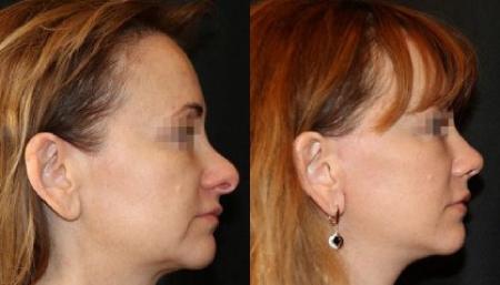 Фото до и после ринопластики в Украинской академии пластической хирургии