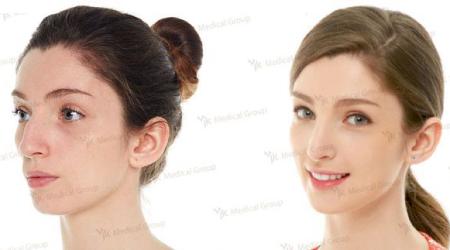 Фото до и после ринопластики в клинике JK (Южная Корея)