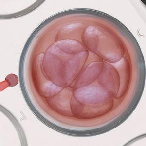 Fetal stem cells in Infinity Clinic