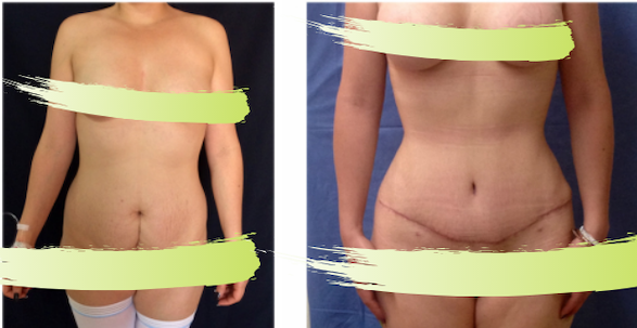 best service 25de9 2489f Before   after liposuction