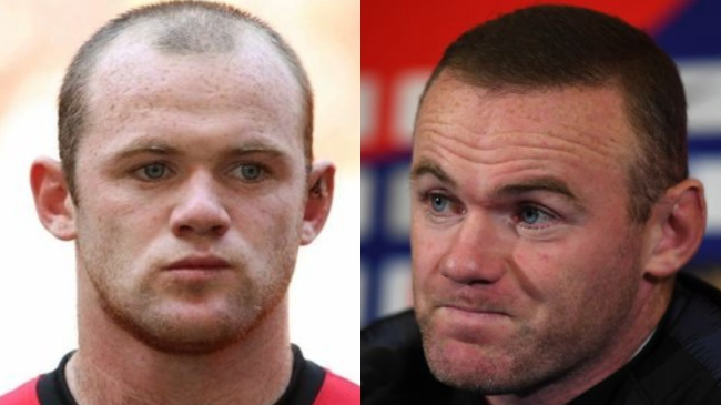 Wayne Rooney before and after hair transplantant
