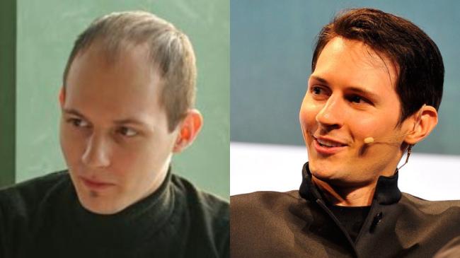 Павел Дуров до и после пересадки волос