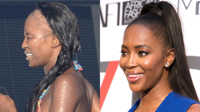 Naomi Campbell before and after hair transplant