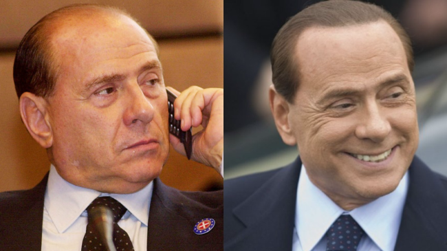 Silvio Berlusconi's hair transplant outcome