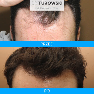 Photos of the head after hair transplant