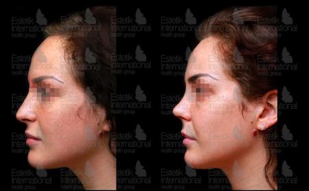 Cost of Rhinoplasty (nose job) in Turkey: 15 clinics, 56