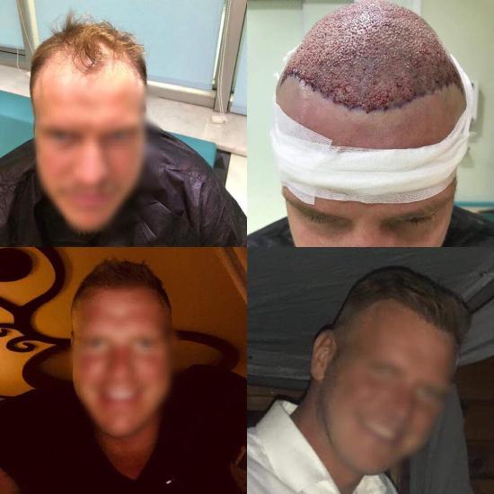 До и после пересадки волос на голову