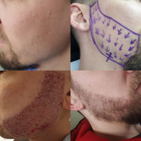 Photo of a beard transplant outcome