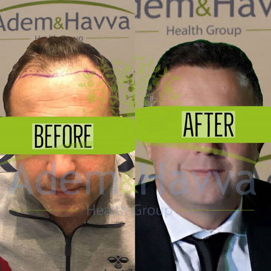 Hair transplant outcome