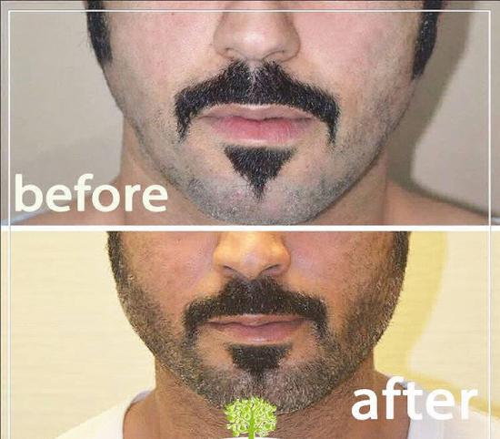 Beard transplant outcome