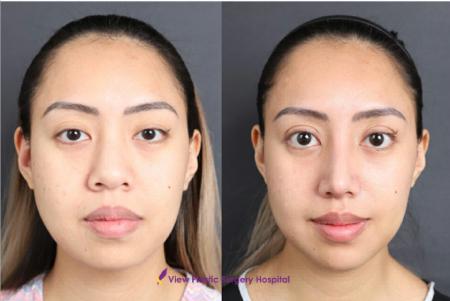 Фото до и после ринопластики в клинике View Plastic Surgery (Южная Корея)